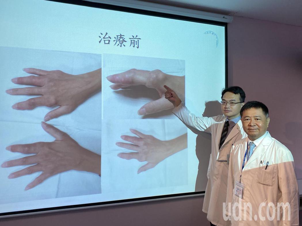 醫師陳呈旭(右)說明,吳姓女病患洗腎期間難以飲食、藥物控制,手指等處關節、血管鈣...