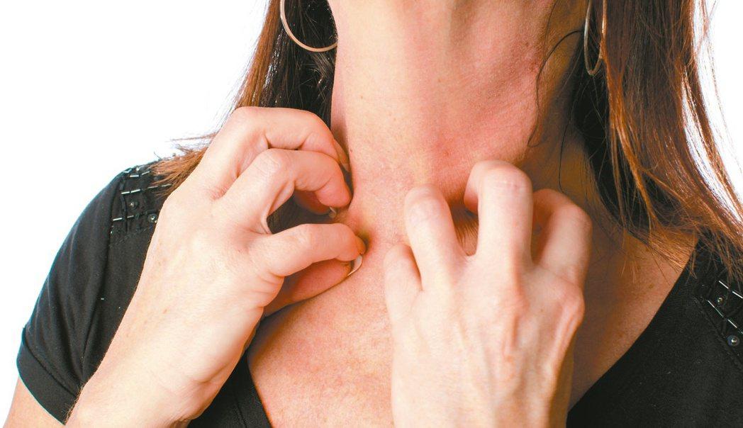 玫瑰糠疹好發於10歲到35歲年輕人身上,發生原因與免疫系統有關,通常是太過疲憊引...