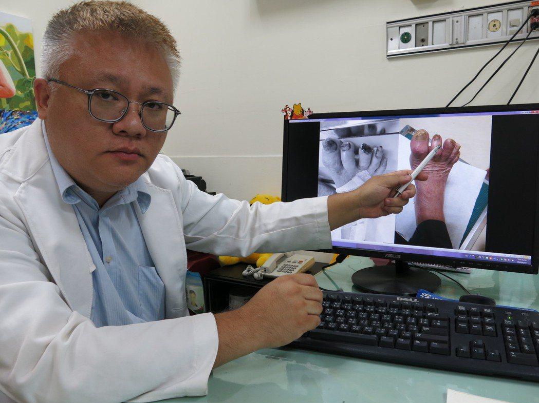 豐原醫院傷口外科醫師陳明澤指出老翁腳趾甲誤剪位置,經治療已經長出肉。圖/豐原醫院...