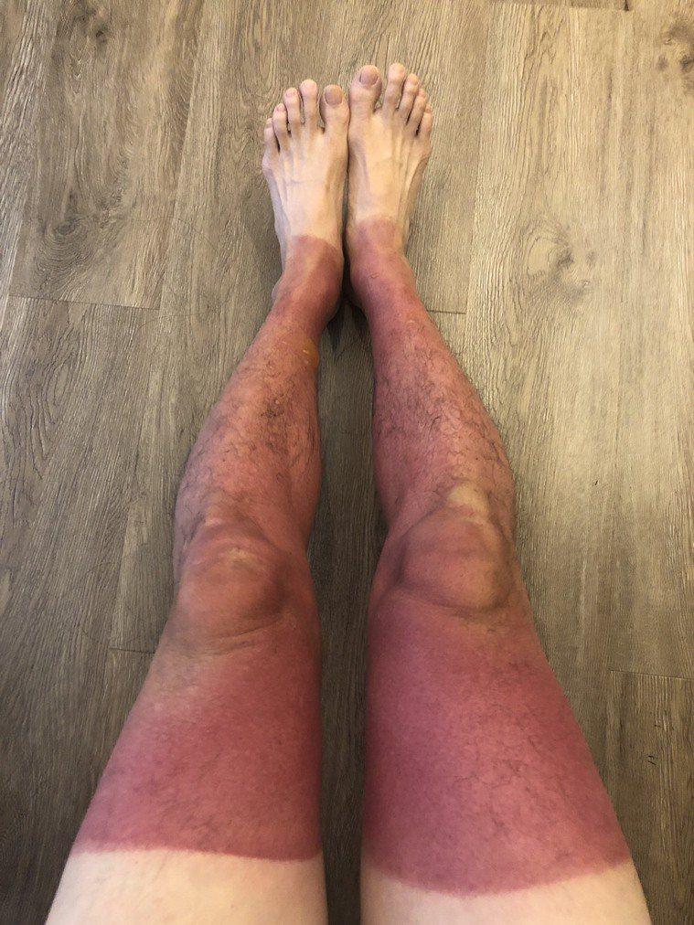 民眾夏日出遊時要小心,一名男子參加夏日獨木舟之旅,由於未防曬,雙腿竟嚴重曬傷。圖...