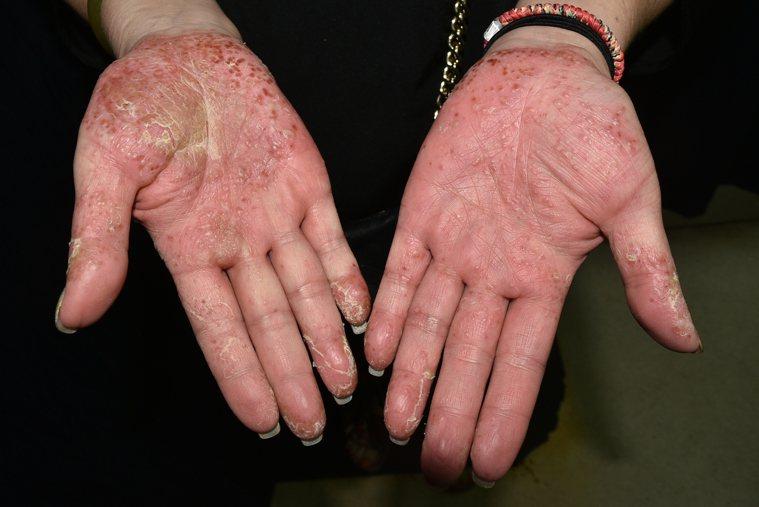 如果手掌、腳底反覆出現水泡,發紅化膿,異常疼痛,請提高警覺,小心罹患「掌蹠膿皰症...