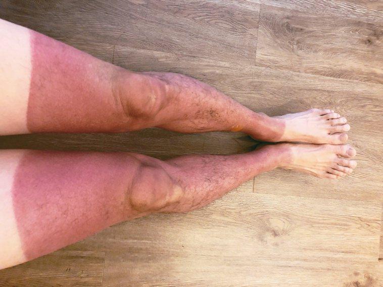 夏日出遊要小心防曬,避免曬傷。圖/書田診所提供
