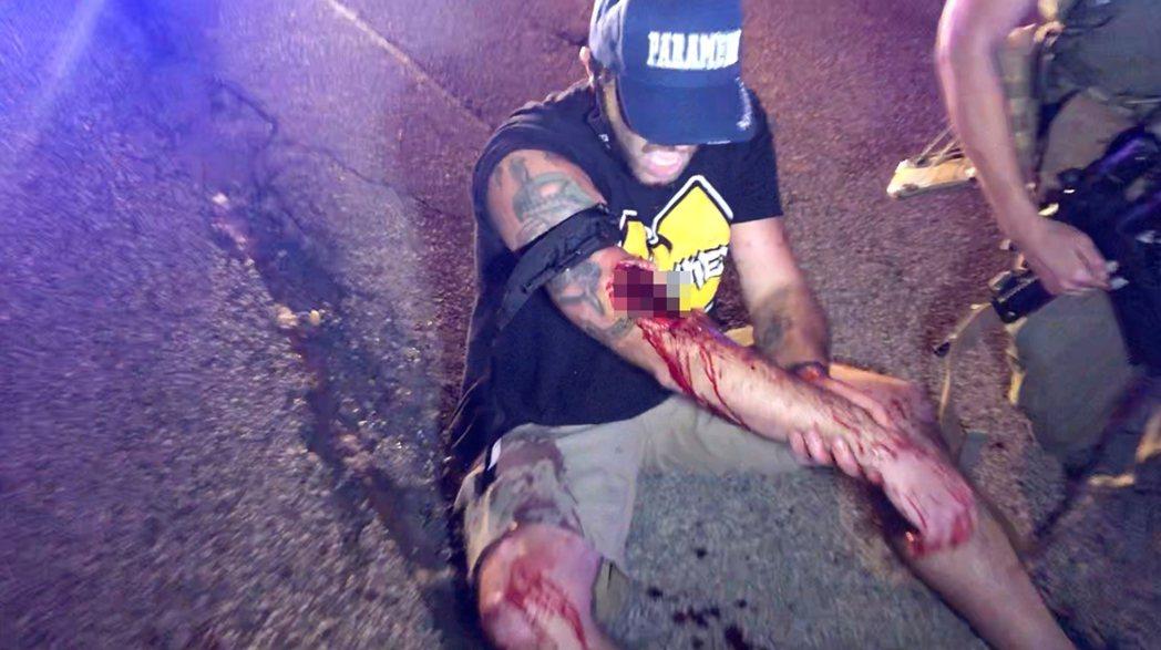 遭到里特豪斯重傷的民眾。 圖/路透社