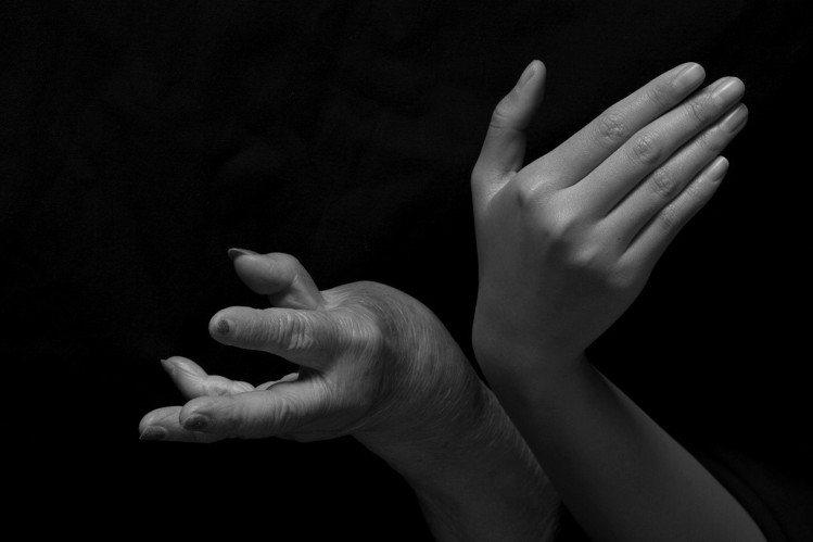 長期受到自體免疫系統攻擊,關節炎病友手腳關節變形,功能受損,而關節炎發作時全身下...