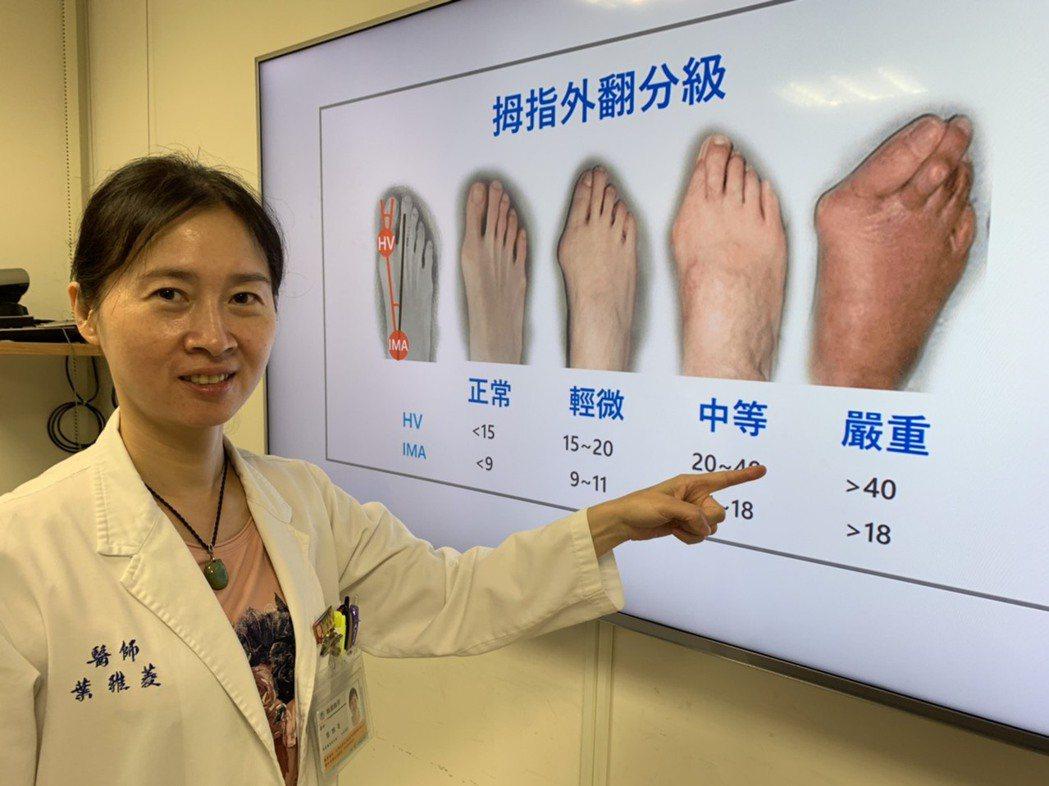 新竹馬偕醫院骨科主治醫師葉雅菱指出,雙腳合上,查看大拇趾是否向第二腳趾傾斜,如果...
