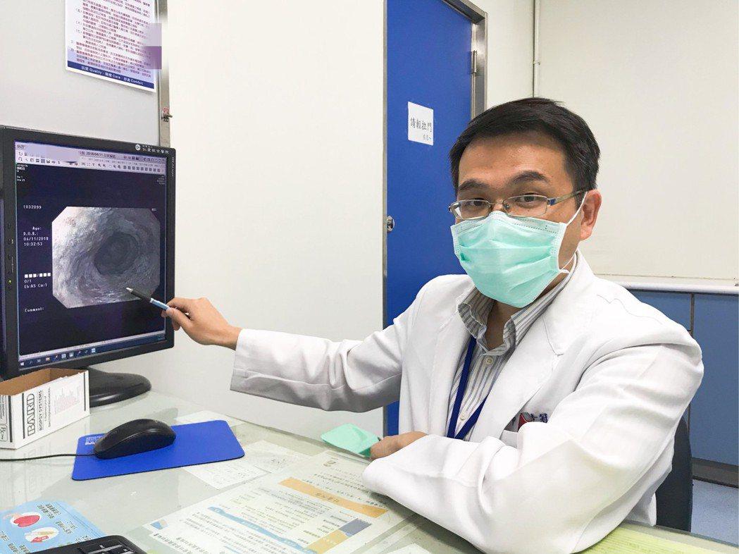 大里仁愛醫院消化內科醫師黃冠智表示,因食道黏膜並沒有「感覺接受器」,因此當出現體...