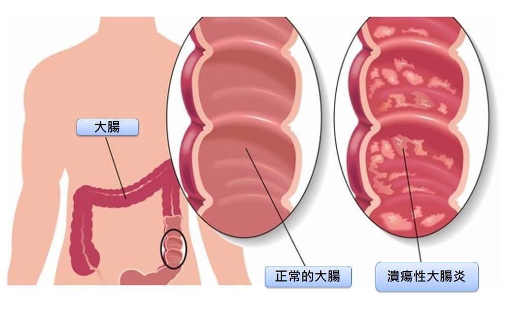 日本首相安倍晉三罹患亞洲人不常見的潰瘍性大腸炎。圖/安南醫院提供