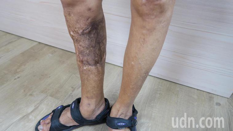 張姓婦人的右小腿骨折,不但骨折不癒合併發慢性骨髓炎。記者簡慧珍/攝影