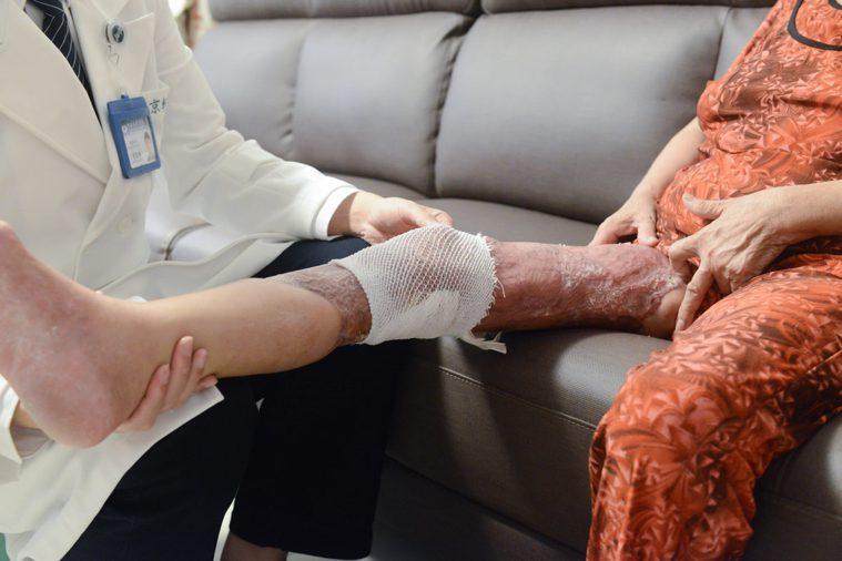 王女士透過抗生素治療、12次清創及植皮手術,三個月後順利出院,復健養傷,且在半年...