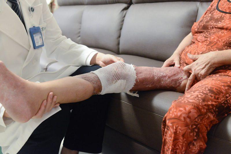 王女士透過抗生素治療、12次清創及植皮手術,三個月後順利出院,復健養傷,且在半年後,恢復正常行走能力。圖/台北慈濟醫院提供