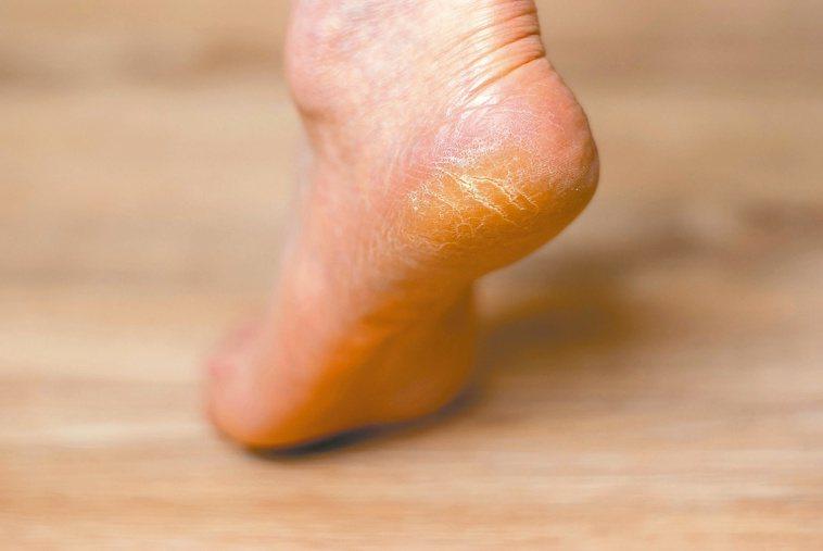 年紀漸長,走路量大、皮膚保水能力下降,容易腳底龜裂。圖/123RF