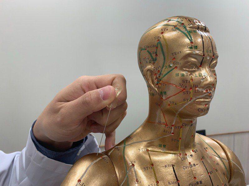 頭痛是臨床上很常見的症狀,以針灸治療頭痛效果很顯著,衛生福利部桃園醫院中醫師廖述...