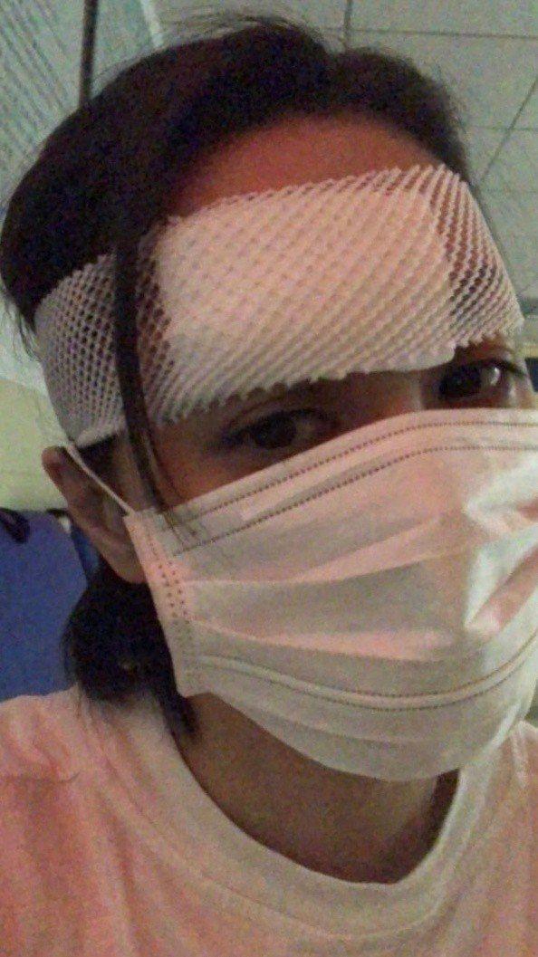 阿嬌頭部受重傷,現已進行包紮。圖/摘自霍汶希微博