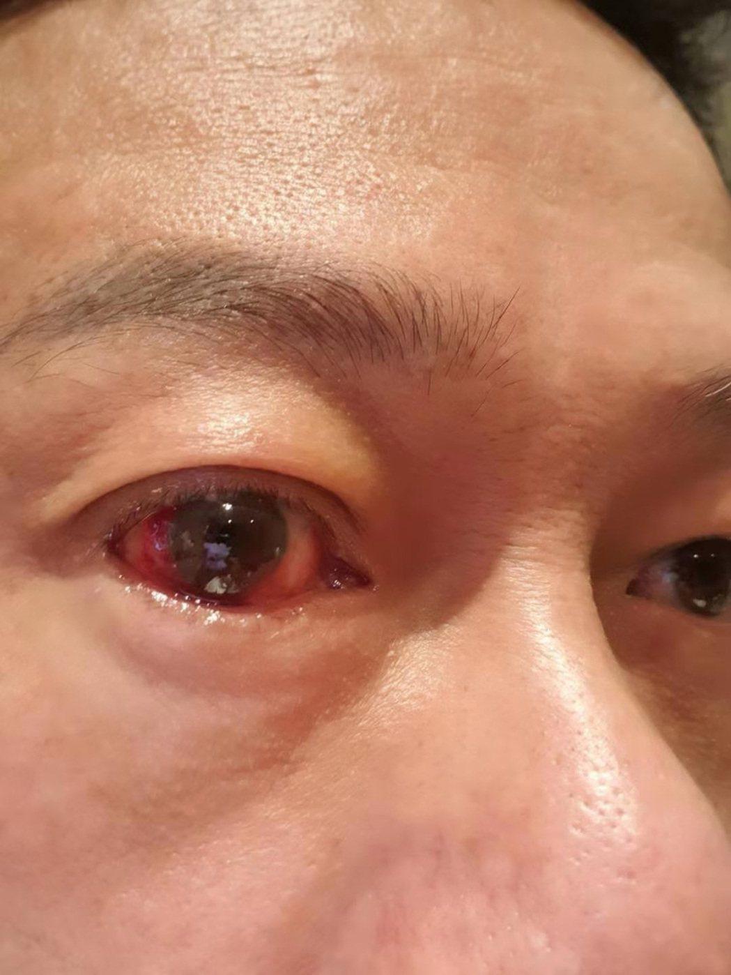 國片「馗降:粽邪2」由金馬影帝李康生主演,電影上映前夕,李康生卻發現眼睛充血,與...