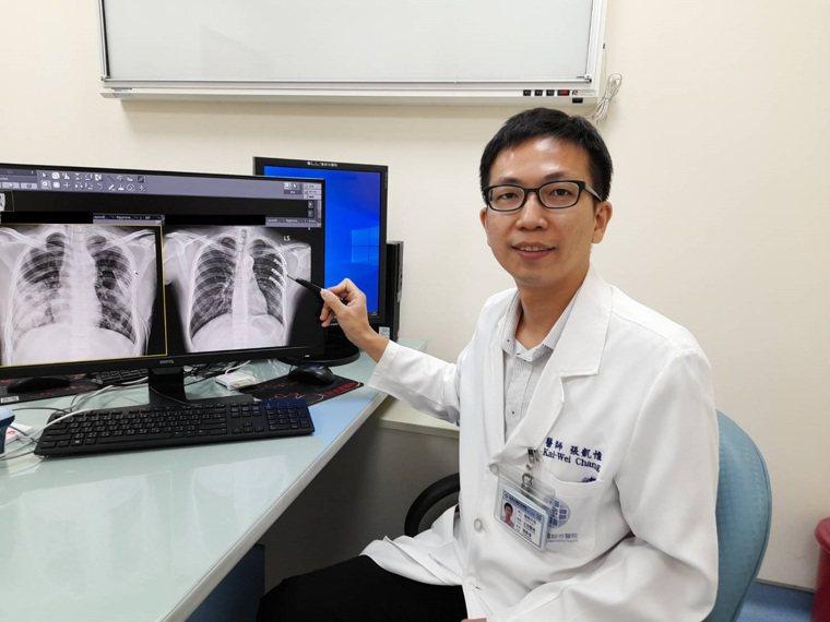 童醫院醫師張凱惟筆指處,是傷患接受肋骨骨折開放性復位及內固定手術之術前術後照片。...