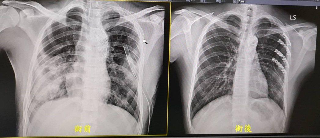 傷患接受肋骨骨折開放性復位及內固定手術之術前術後照片。圖/童醫院提供