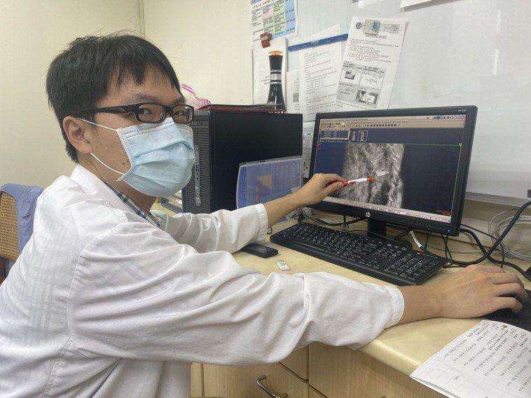 小港醫院神經外科醫師吳東軒表示,黃姓男子因骨質疏鬆導致胸椎壓迫性骨折,才誘發背痛...