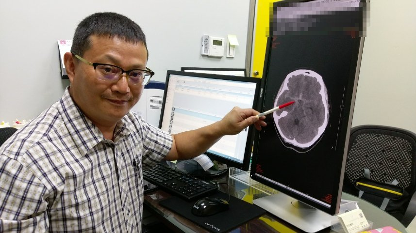 長安醫院神經外科醫師李漢忠形容,「開顱夾除手術」手術過程有如拆炸彈。圖/長安醫院...