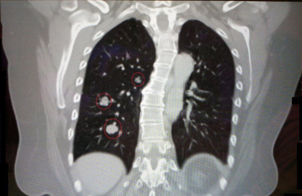 54歲劉姓女子因子宮內膜癌轉移肺腫瘤(紅圈處),經單孔胸腔鏡手術切除肺葉,恢復狀...