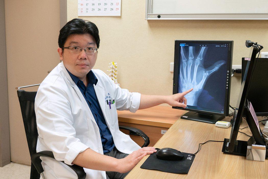 嘉義長庚骨科醫師莊柏堯說明「拇指基底關節炎」症狀。圖/ 嘉義長庚提供
