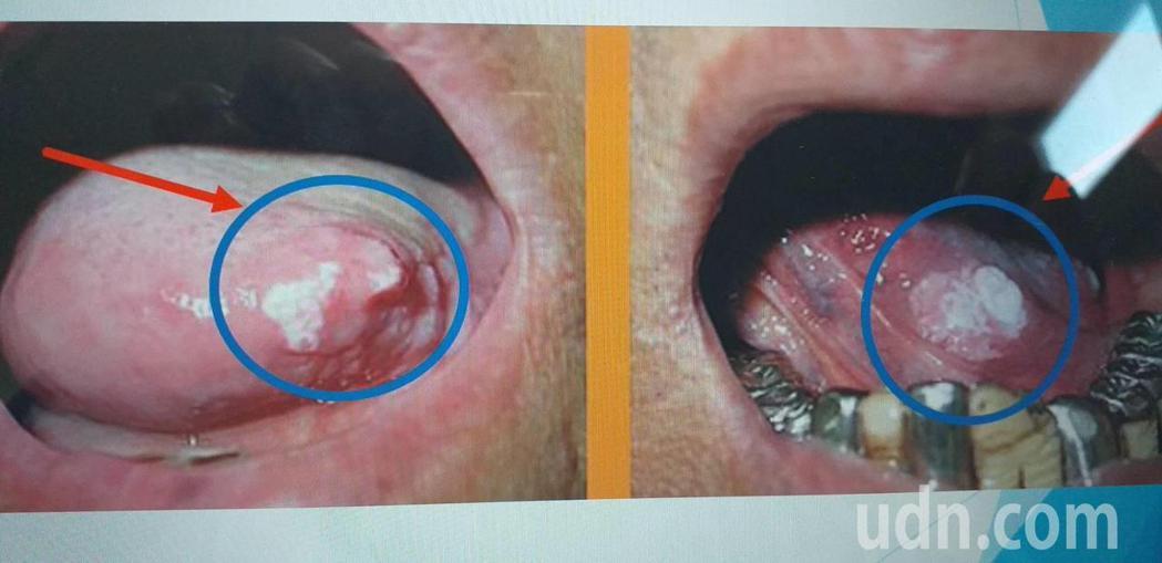 沒吃檳榔的人,口腔內出現不明白斑可要小心,最好趕快就診。記者蔡維斌/翻攝