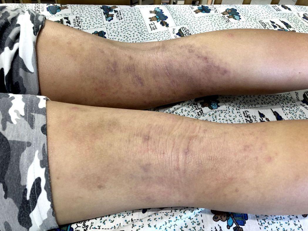 吳小姐的小孩罹患異位性皮膚炎,手腳容易脫屑,起紅疹,讓她照顧起來壓力好大。圖/吳...