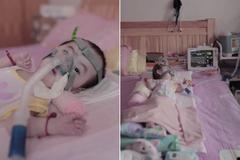 2歲女嬰得罕病!救命藥一針逾200萬 網嘆:再多都只是拖延