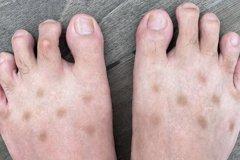 夏天怪病?腳上出現不明斑點 同症狀網友喊:沒救了