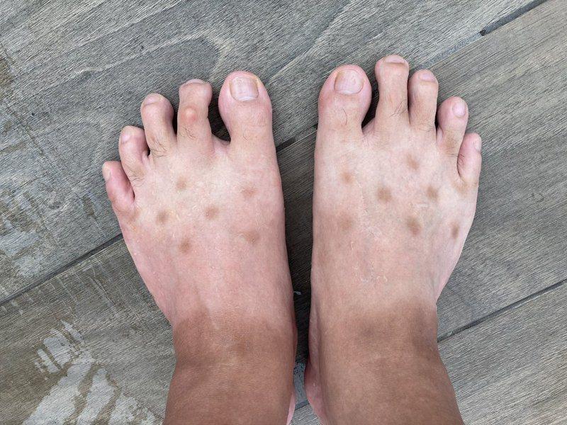 日本網友腳上長出不明斑點,卻查不出原因。圖擷取自twitter