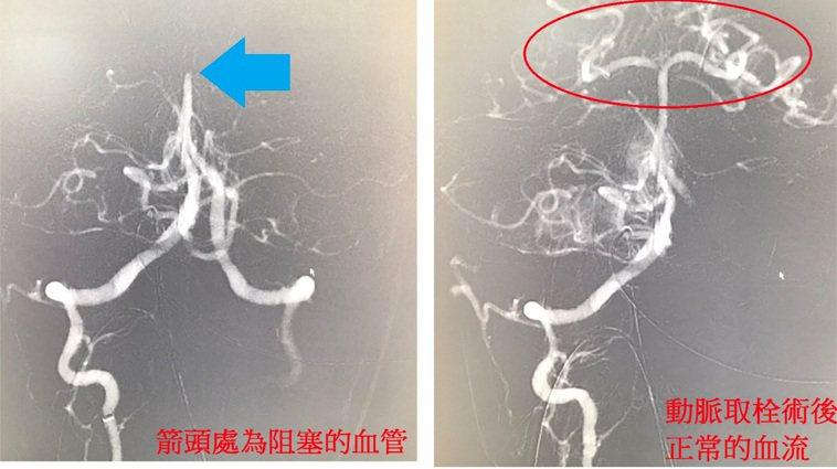 新竹一名37歲的周姓男子基底動脈血管阻塞,造成橋腦中風,經過醫師施以顱內動脈取栓...