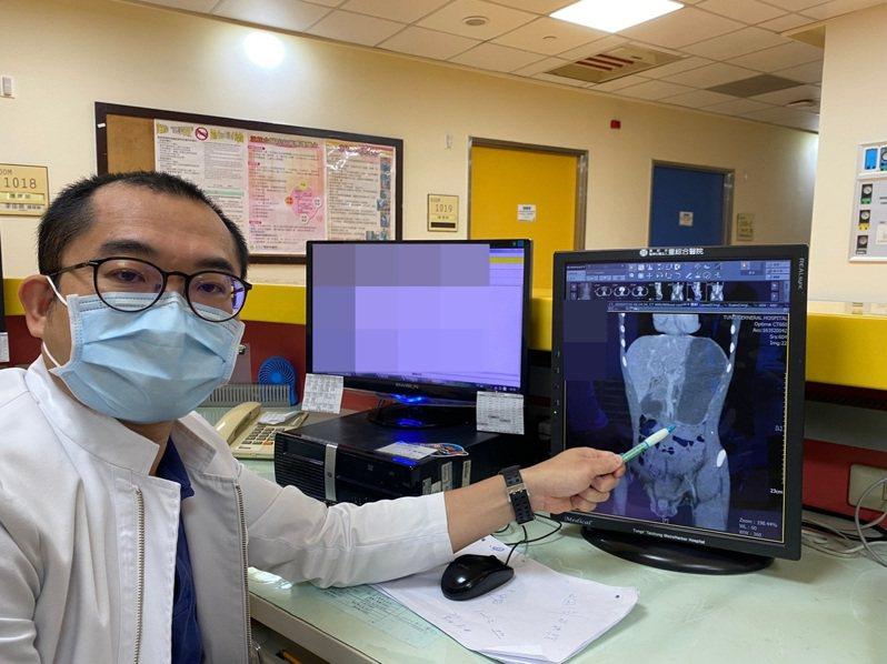 童綜合醫院小兒外科主任郭敏勇指出十二指腸遭兩動脈夾住阻塞位置。圖/童綜合醫院提供