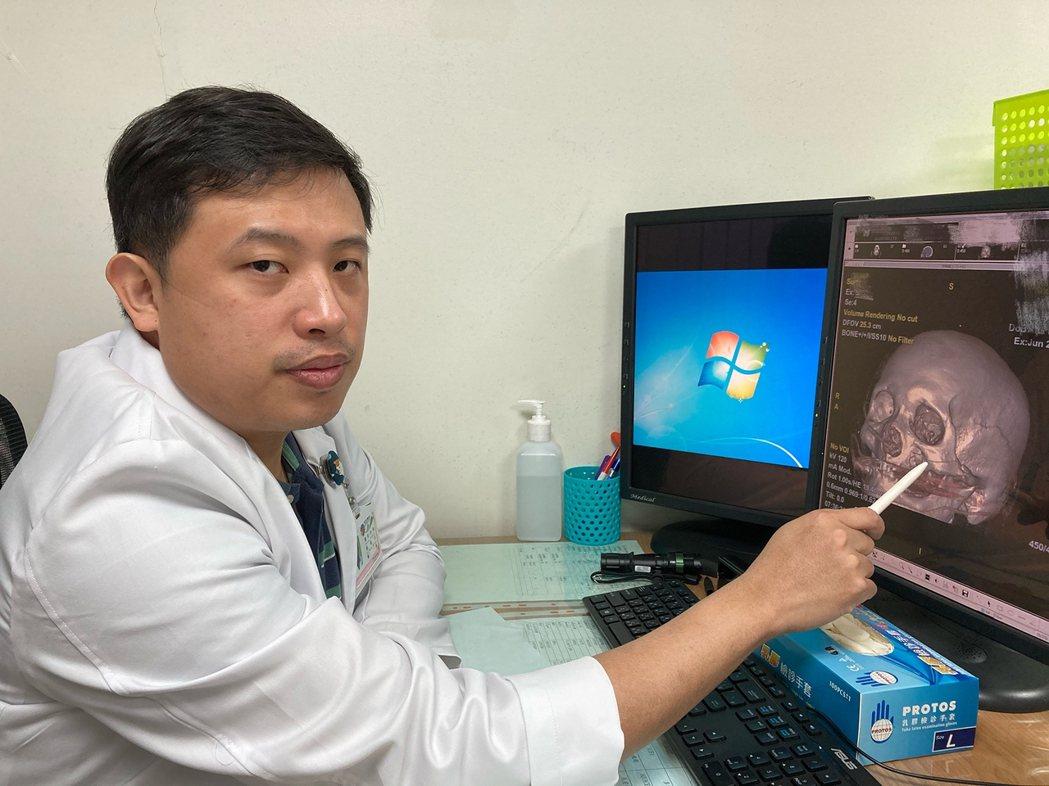 南投醫院整形外科醫師呂明川說阿嬤臉部因為車禍多處骨折,但經過手術復原相當良好。圖...