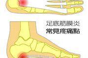 別急著積極治療治足底筋膜炎 釐清原因為首要