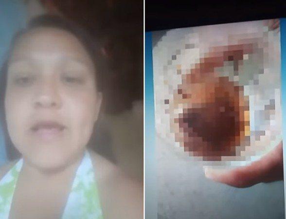 巴西一名女子咬下前男友的睪丸。 圖/翻攝自YouTube Clique União