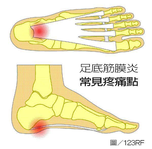 足底筋膜炎常見疼痛點 圖/123RF