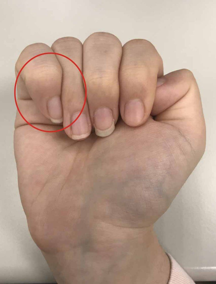 查看紅圈處,大拇指是否有超過小指。圖/聯合報系資料照