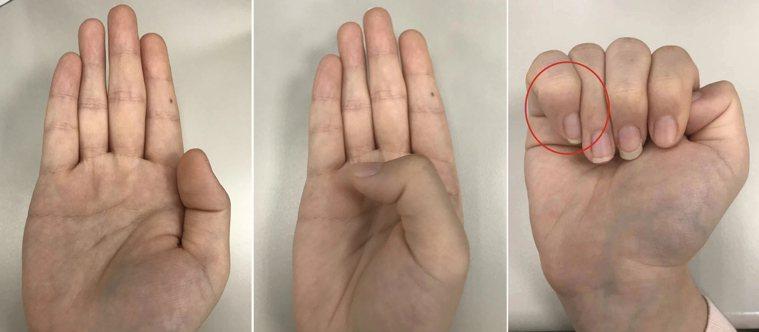 簡單的3步驟,檢測自己是否罹患馬凡氏症候群。圖/聯合報系資料照