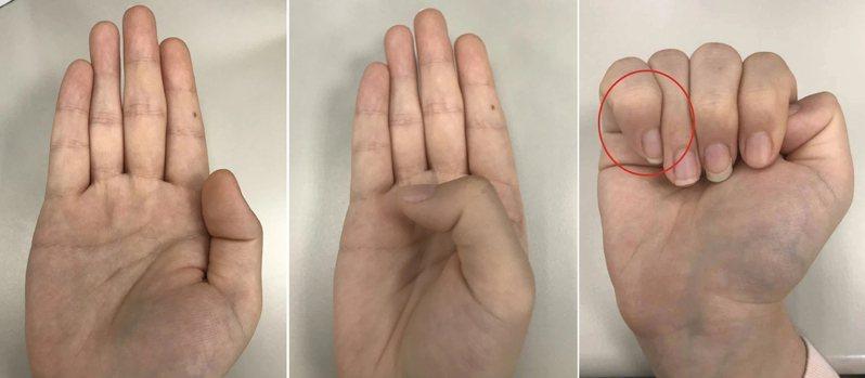 簡單的3步驟,檢測自己是否罹患馬凡氏症候群,圖三,紅圈處顯示為拇指未超過小指。圖/聯合報系資料照