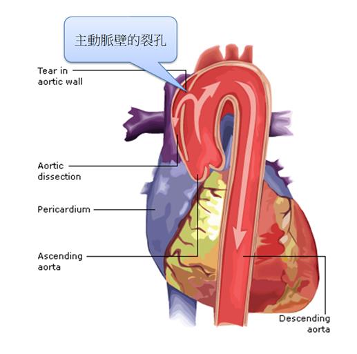 醫師提醒主動脈剝離致命率高,一定要特別注意。圖/許秉毅醫師提供