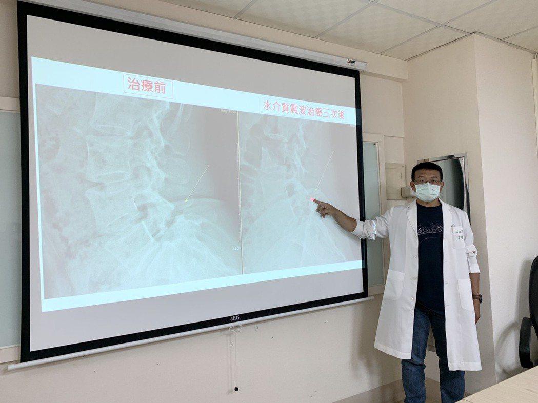 「樂活健康診所」楊椒喬醫師說明患者接受3次水介質震波治療後,不開刀卻能治療骨折。...