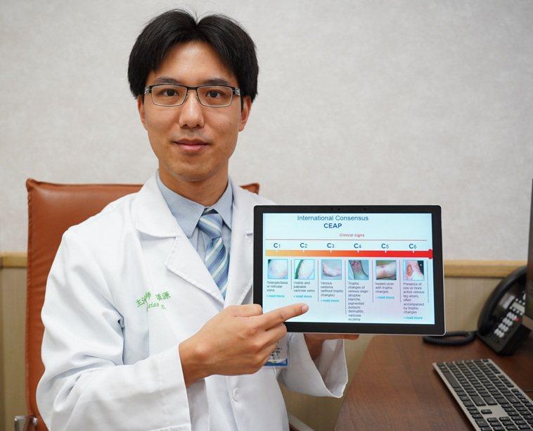 聯新國際醫院心臟血管外科主治醫師蕭鎮源分析靜脈曲張主要原因和最新治療方式。 圖/...