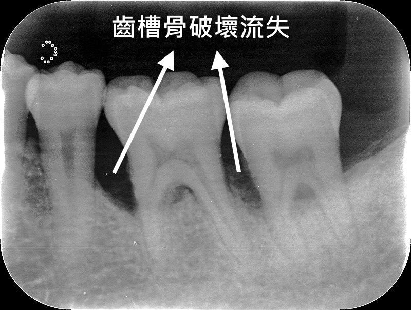 臺北榮民總醫院桃園分院牙醫師王碩提醒,牙周初期發生問題,患者常自覺沒有不舒服也無...