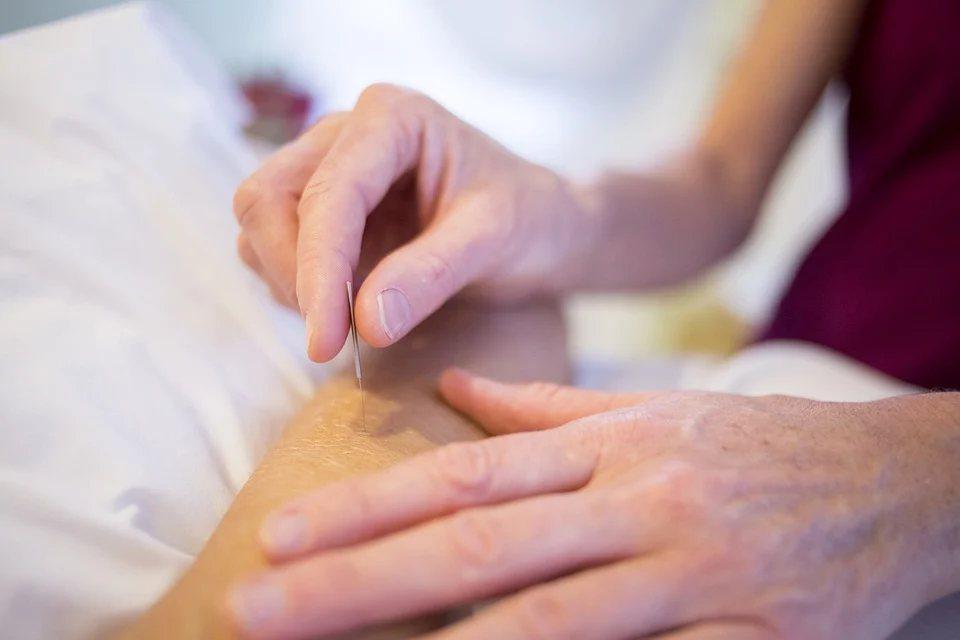 針灸對疼痛的治療效果相當顯著,中醫臨床的針灸治療也已被WHO認證。 圖/pexe...