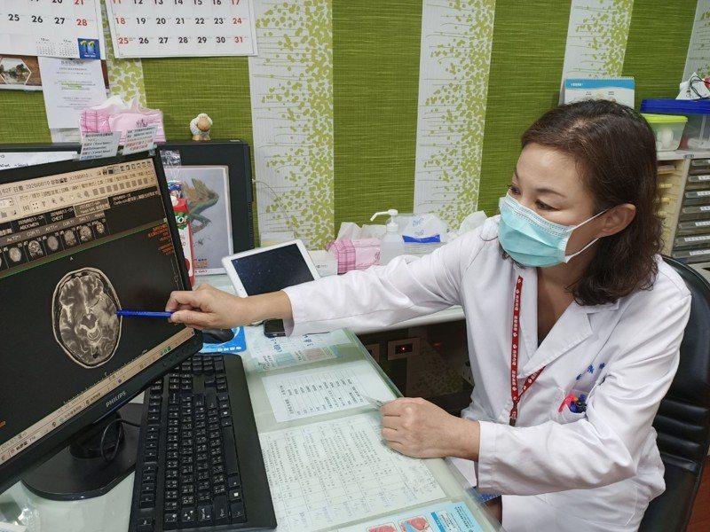 62歲湯姓婦人突然講不出話來,確診感染罕見且致命的單純皰疹病毒一型HSV-1腦炎,頭份市為恭醫院神經內科主任朱清華提醒及早使用抗病毒藥物治療。圖/為恭醫院提供