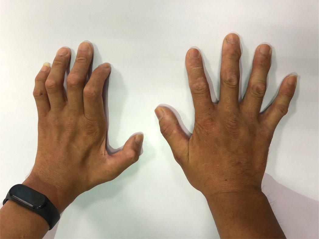 1名37歲男子罹有脊髓空洞症,接受多次手術後,雙手僵硬及攣縮的情況雖有改善,但左...
