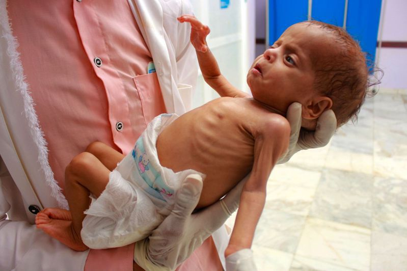 世界糧食計畫署預測今年面對嚴重糧食不足的人將大增至2.65億,較去年高1倍。圖為醫務人員今年7月在葉門北部一個醫療中心抱著一名營養不良的葉門兒童。Getty Images