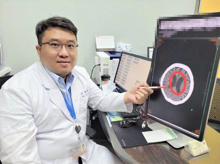 長安醫院神經外科主任朱彥澤醫師指出,水腦症是指腦脊髓液不正常蓄積在腦部,當腦脊髓...