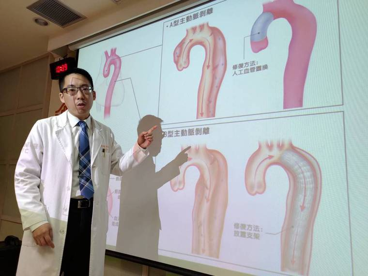 主動脈剝離是常見的猝死原因之一,林口長庚醫院心臟外科醫師陳紹緯呼籲,若是有主動脈...