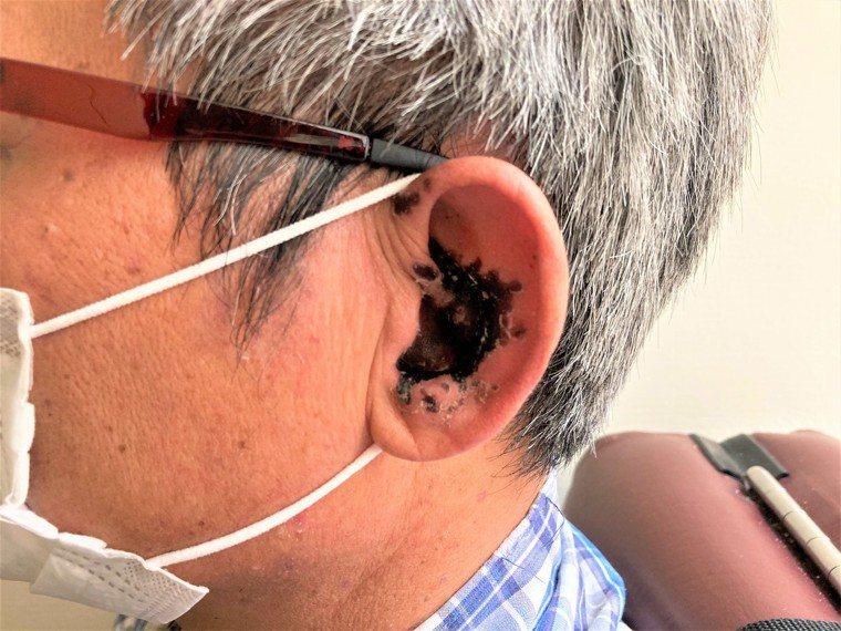 南投縣黃姓男子診出彌漫性帶狀皰疹,皮蛇不僅長進左耳,還引發左側顏面神經麻痺。圖/...