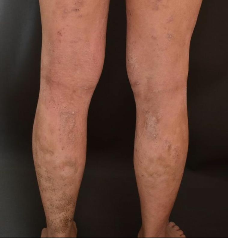 異位性皮膚炎症狀。圖/林旻憲提供